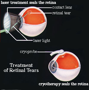 Treatment Of Retinal Tear Image.
